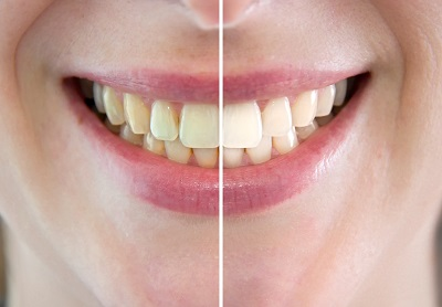 Tooth Whitening Before After